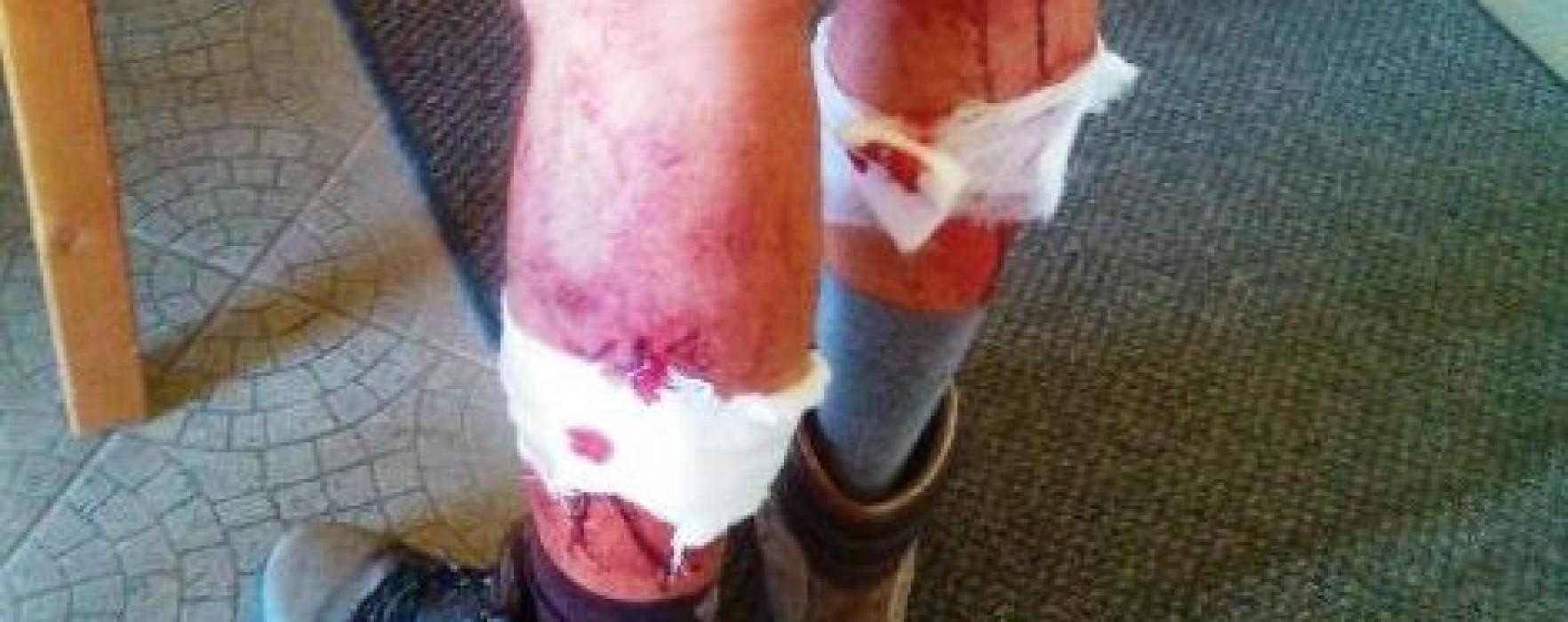Dâmboviţa: Turist atacat de câini, pe munte, a cerut ajutor la 112